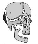 顔のゆがみをとる頭蓋骨矯正.jpg